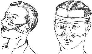 пращевидная повязка при носовом кровотечении